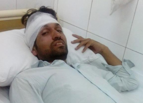 Pakistani journalist beaten in head during protests, accuses police in the attack